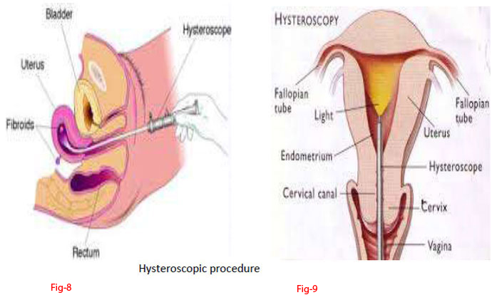 Laparoscopy and Hysteroscopy - Hinduja IVF Center